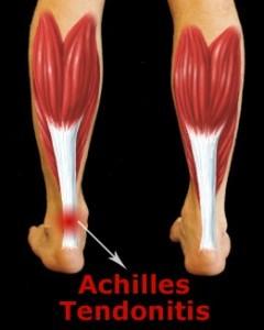 achilles_tendonitis240x300